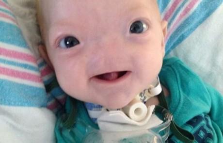 מטורף! תינוק נולד בלי אף, איך הוא נושם? כנסו לראות!