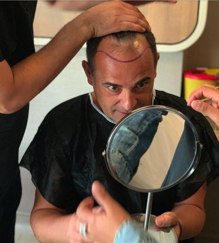 הכנה לטיפול של השתלת שיער בטורקיה