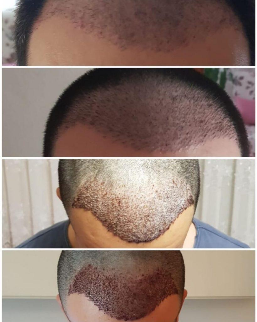 השתלת שיער - צמחית שיער חדש לגבר
