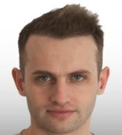 השתלת שיער לגבר - אחרי טיפול