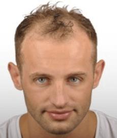 השתלת שיער לגבר - לפני טיפול