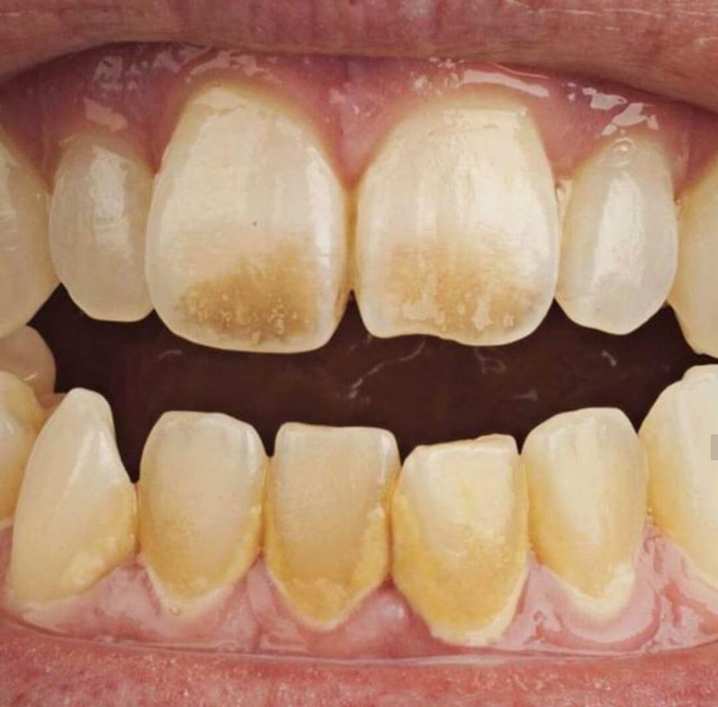 הפסקת עישון - שיניים צהובות של מעשנים