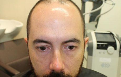 כל הדרכים לטפל בשיער דליל אצל גברים