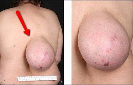 """האישה עם """"השד"""" שצמח על גבה: בת ה- 46 גילתה לתדהמתה שד נוסף, מקרה נדיר אך אמיתי! חובה לראות"""
