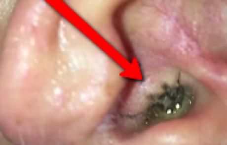איך הסתתר לו עכביש באוזן?